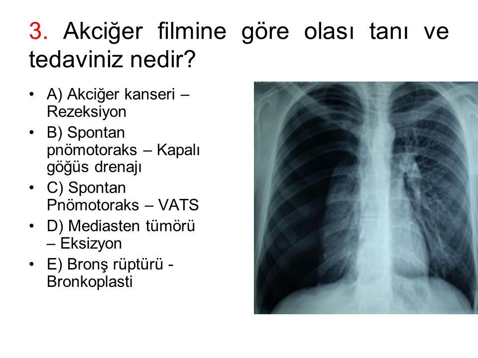 3. Akciğer filmine göre olası tanı ve tedaviniz nedir