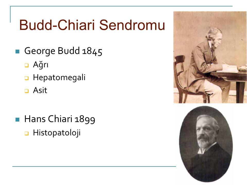 Budd-Chiari Sendromu George Budd 1845 Hans Chiari 1899 Ağrı