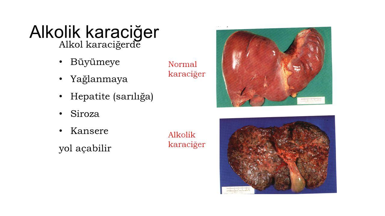 Alkolik karaciğer Alkol karaciğerde Büyümeye Yağlanmaya