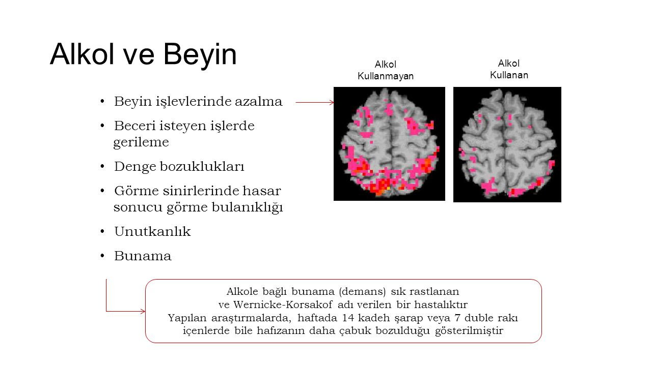 Alkol ve Beyin Beyin işlevlerinde azalma