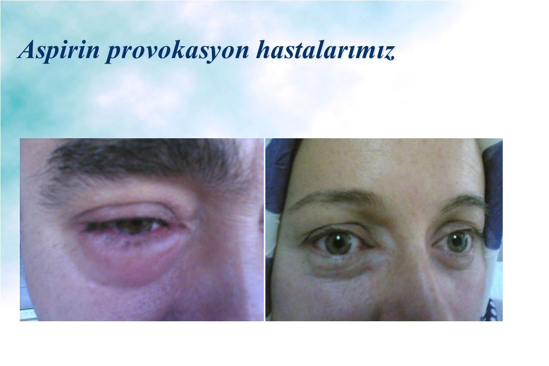 Aspirin provokasyon hastalarımız