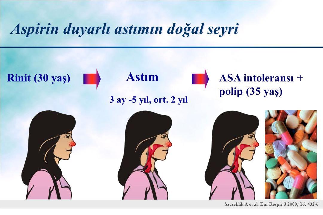 Aspirin duyarlı astımın doğal seyri