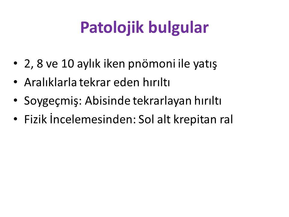 Patolojik bulgular 2, 8 ve 10 aylık iken pnömoni ile yatış