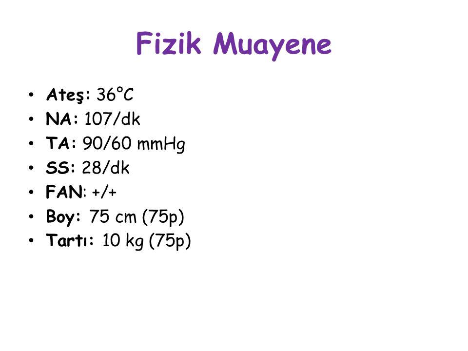 Fizik Muayene Ateş: 36°C NA: 107/dk TA: 90/60 mmHg SS: 28/dk FAN: +/+