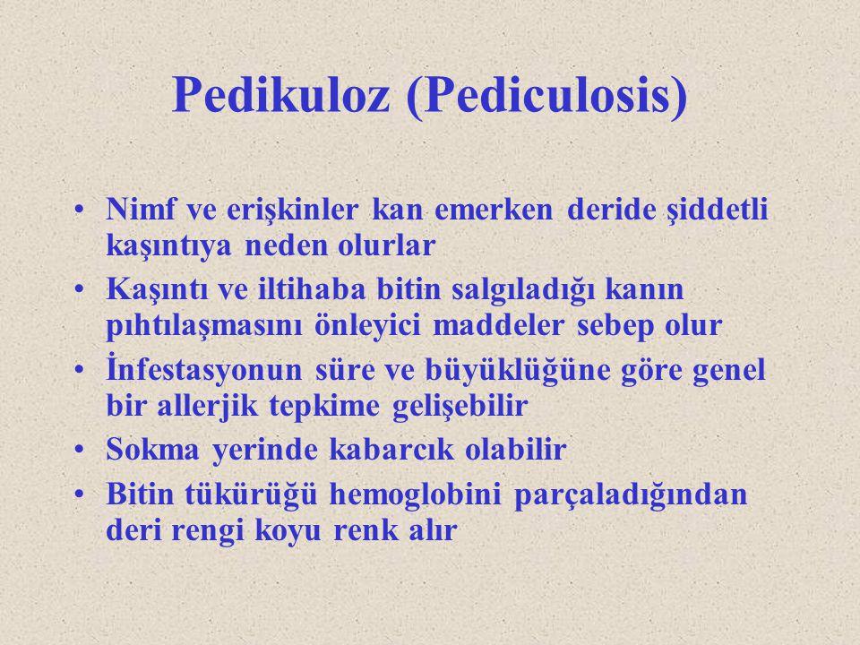 Pedikuloz (Pediculosis)
