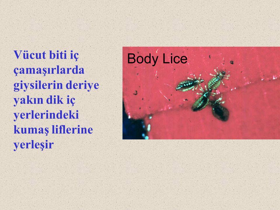 Vücut biti iç çamaşırlarda giysilerin deriye yakın dik iç yerlerindeki kumaş liflerine yerleşir