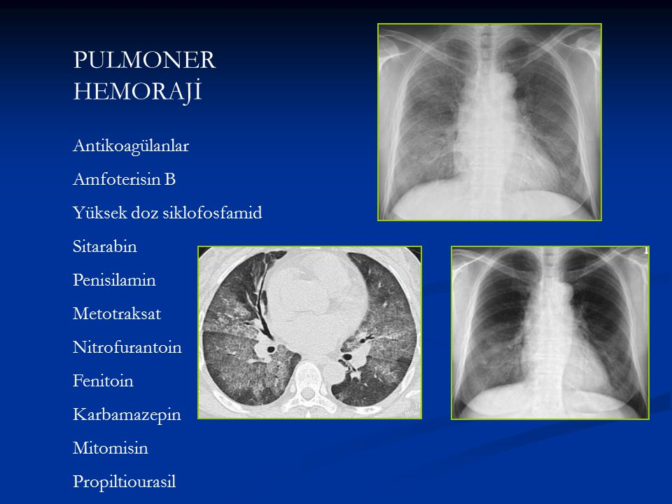 PULMONER HEMORAJİ Antikoagülanlar Amfoterisin B