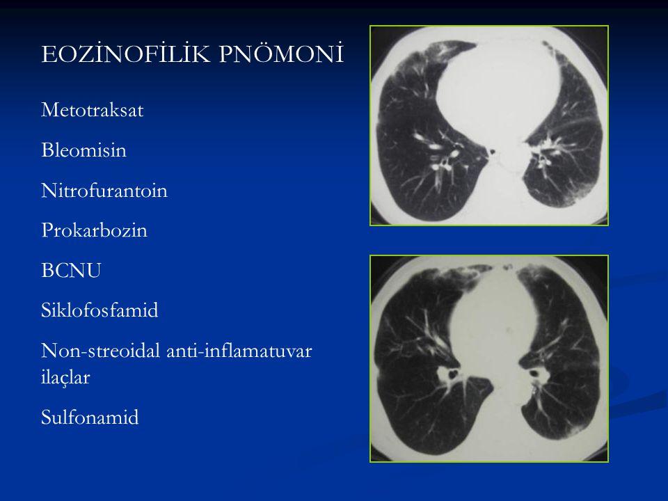 EOZİNOFİLİK PNÖMONİ Metotraksat Bleomisin Nitrofurantoin Prokarbozin