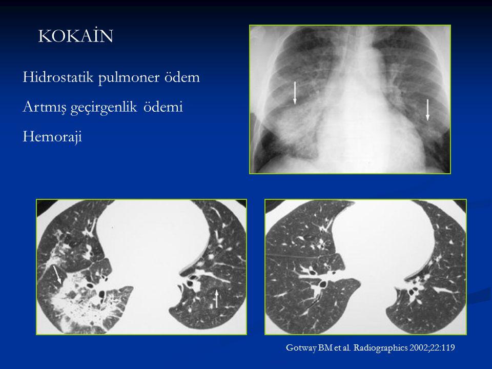 KOKAİN Hidrostatik pulmoner ödem Artmış geçirgenlik ödemi Hemoraji