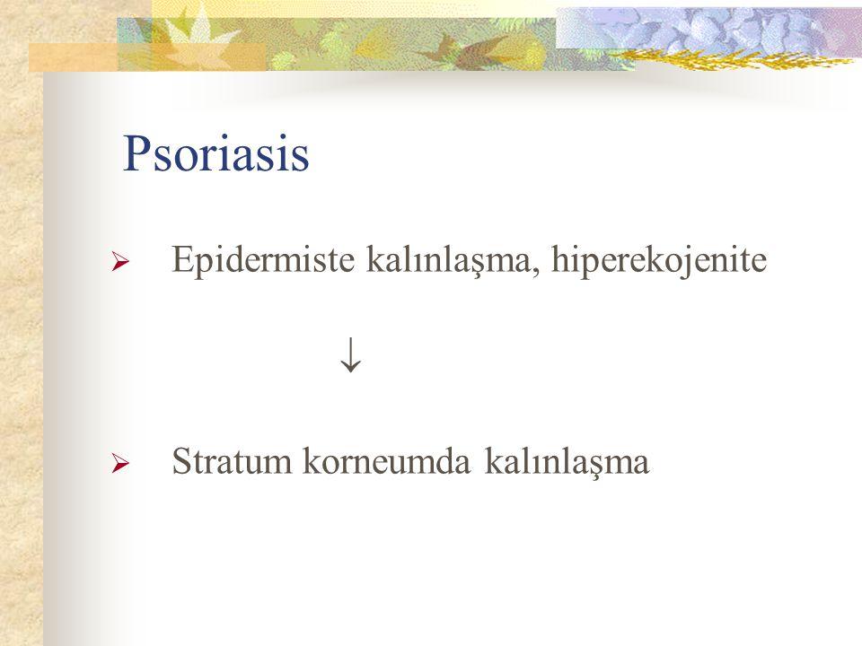 Psoriasis Epidermiste kalınlaşma, hiperekojenite 