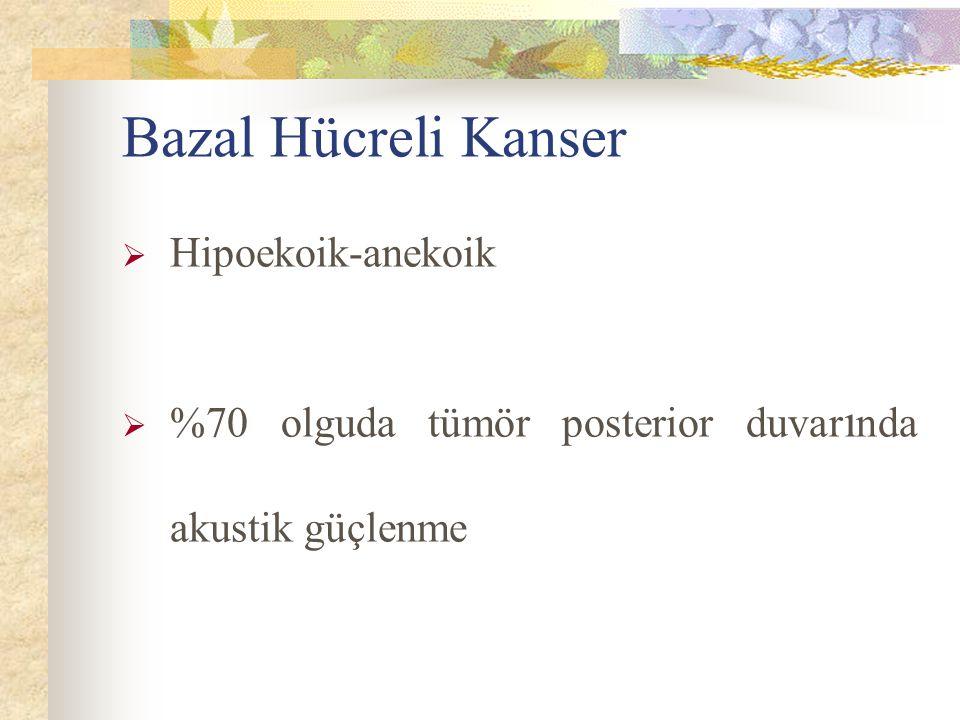 Bazal Hücreli Kanser Hipoekoik-anekoik
