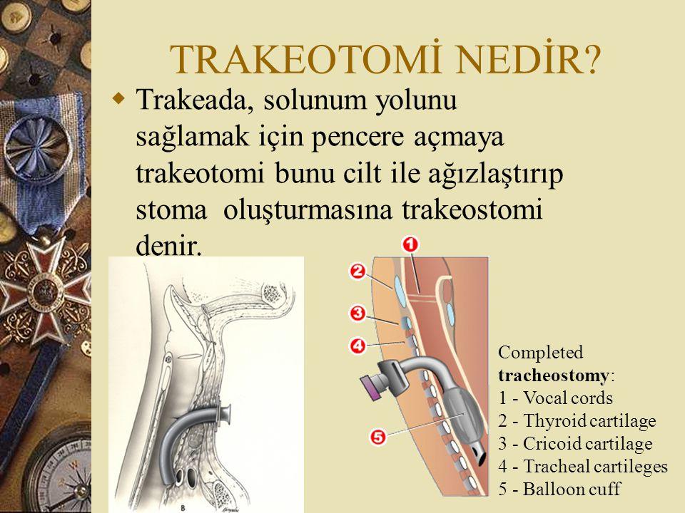 TRAKEOTOMİ NEDİR Trakeada, solunum yolunu sağlamak için pencere açmaya trakeotomi bunu cilt ile ağızlaştırıp stoma oluşturmasına trakeostomi denir.