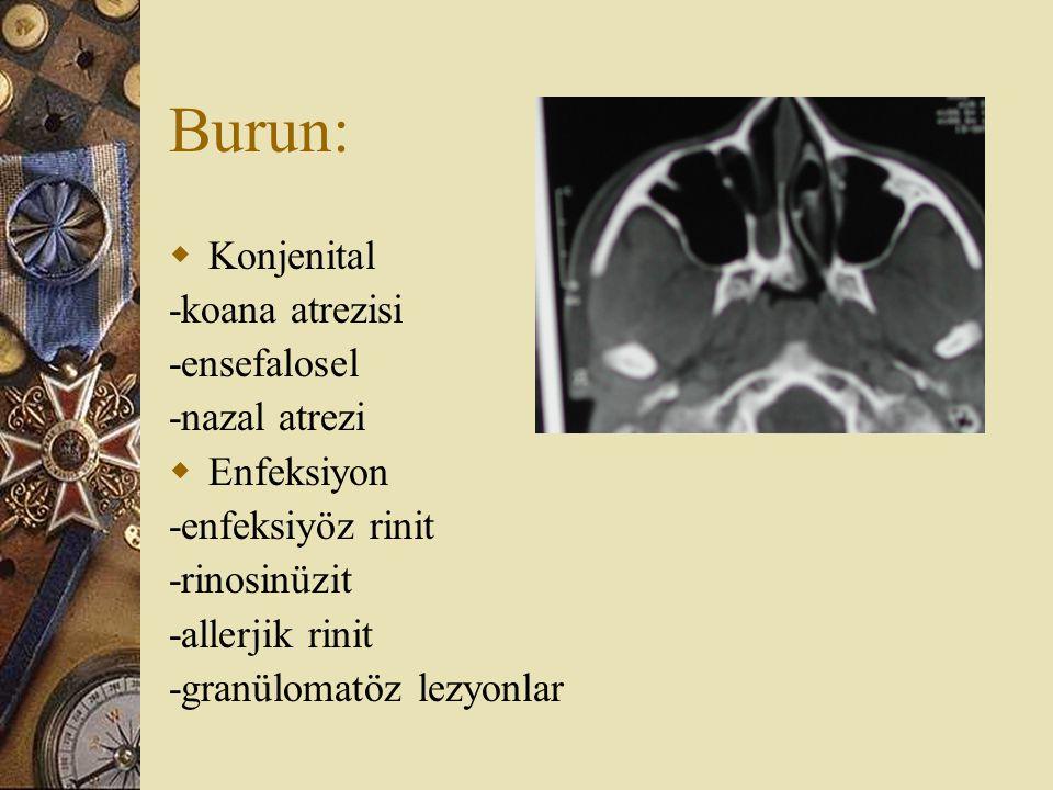 Burun: Konjenital -koana atrezisi -ensefalosel -nazal atrezi