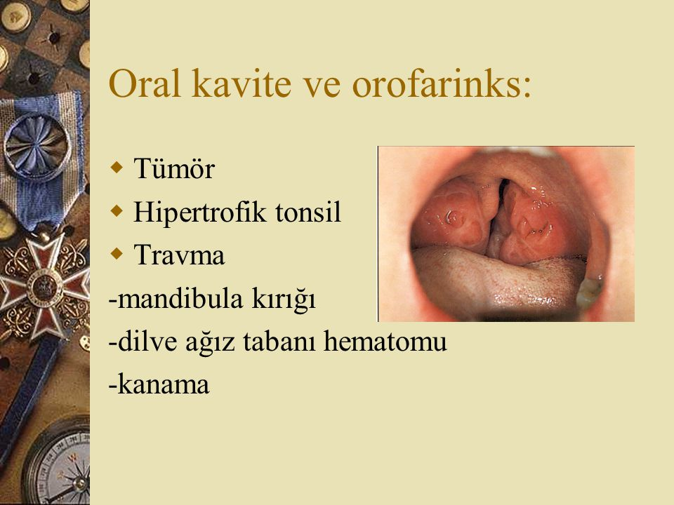 Oral kavite ve orofarinks: