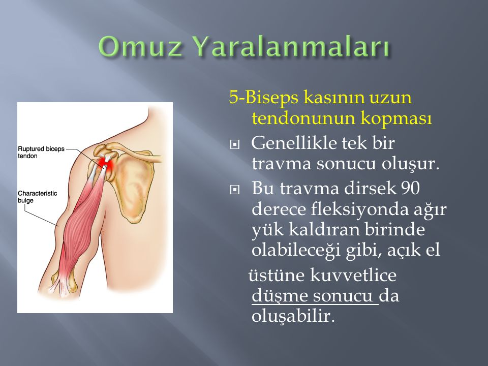 Omuz Yaralanmaları 5-Biseps kasının uzun tendonunun kopması