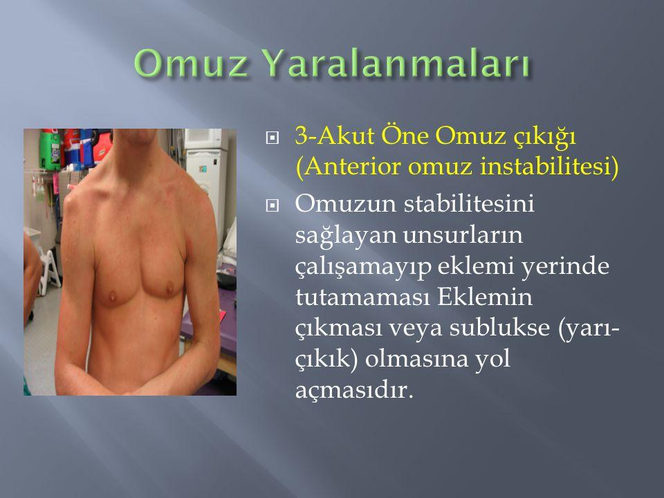 Omuz Yaralanmaları 3-Akut Öne Omuz çıkığı (Anterior omuz instabilitesi)