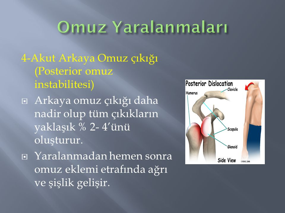 Omuz Yaralanmaları 4-Akut Arkaya Omuz çıkığı (Posterior omuz instabilitesi)