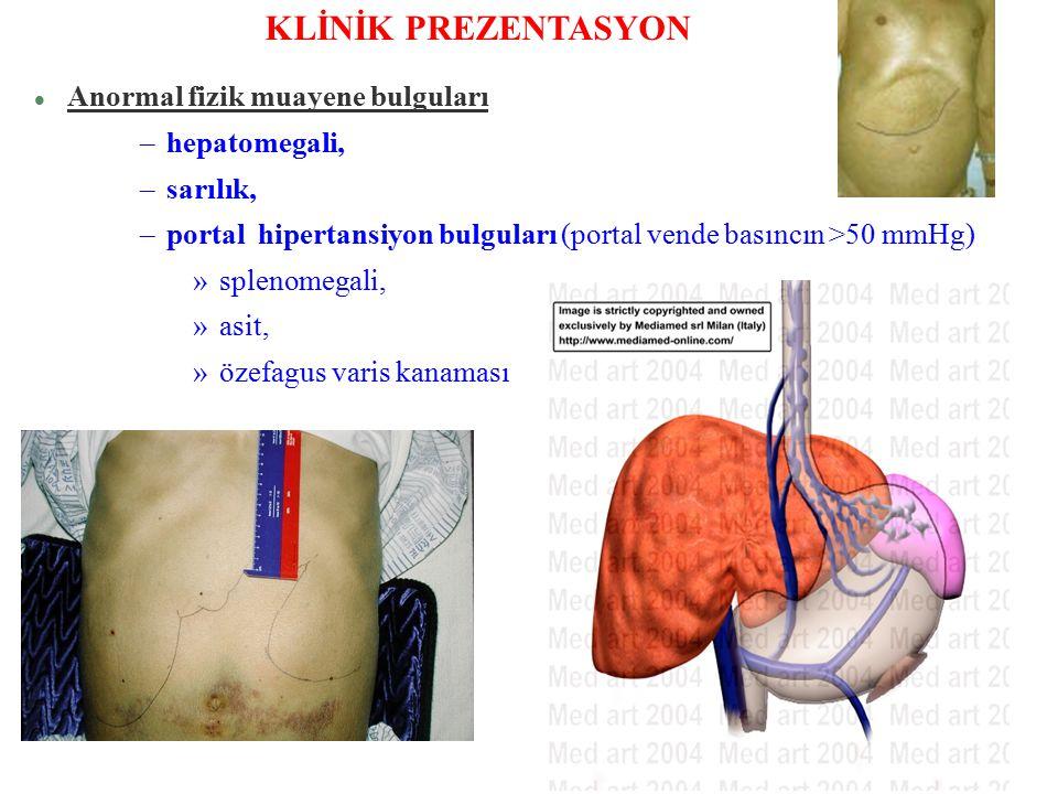 KLİNİK PREZENTASYON Anormal fizik muayene bulguları hepatomegali,