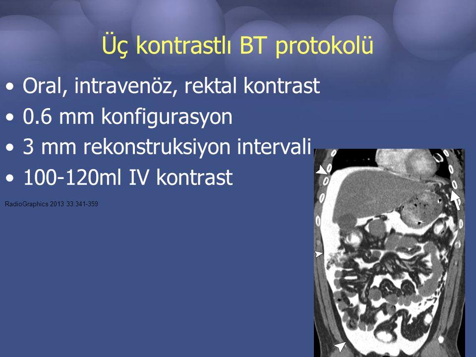 Üç kontrastlı BT protokolü