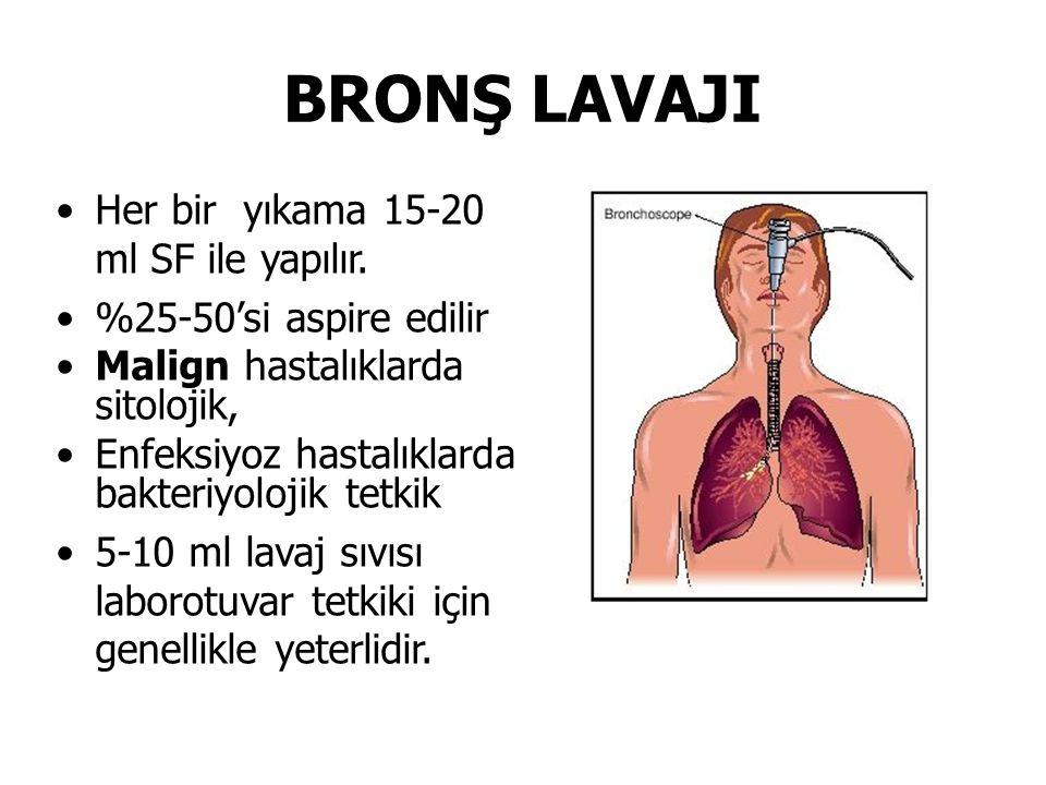 BRONŞ LAVAJI Her bir yıkama 15-20 ml SF ile yapılır.
