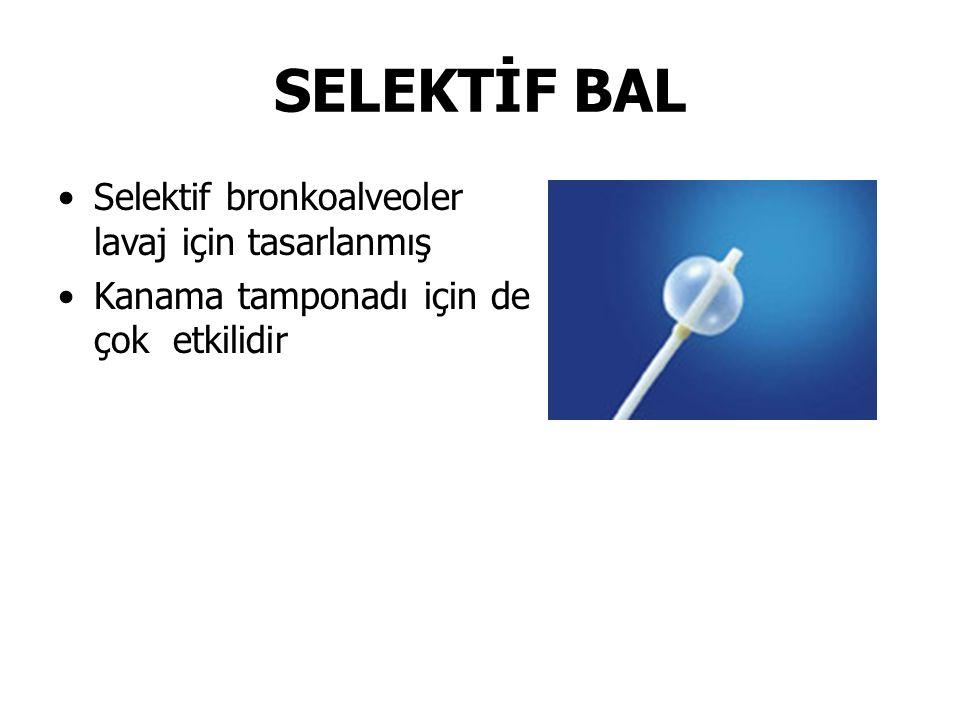 SELEKTİF BAL Selektif bronkoalveoler lavaj için tasarlanmış