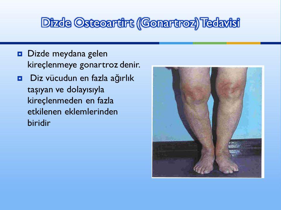 Dizde Osteoartirt (Gonartroz) Tedavisi