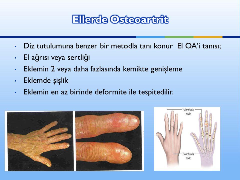Ellerde Osteoartrit Diz tutulumuna benzer bir metodla tanı konur El OA'i tanısı; El ağrısı veya sertliği.