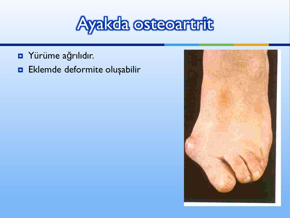 Ayakda osteoartrit Yürüme ağrılıdır. Eklemde deformite oluşabilir