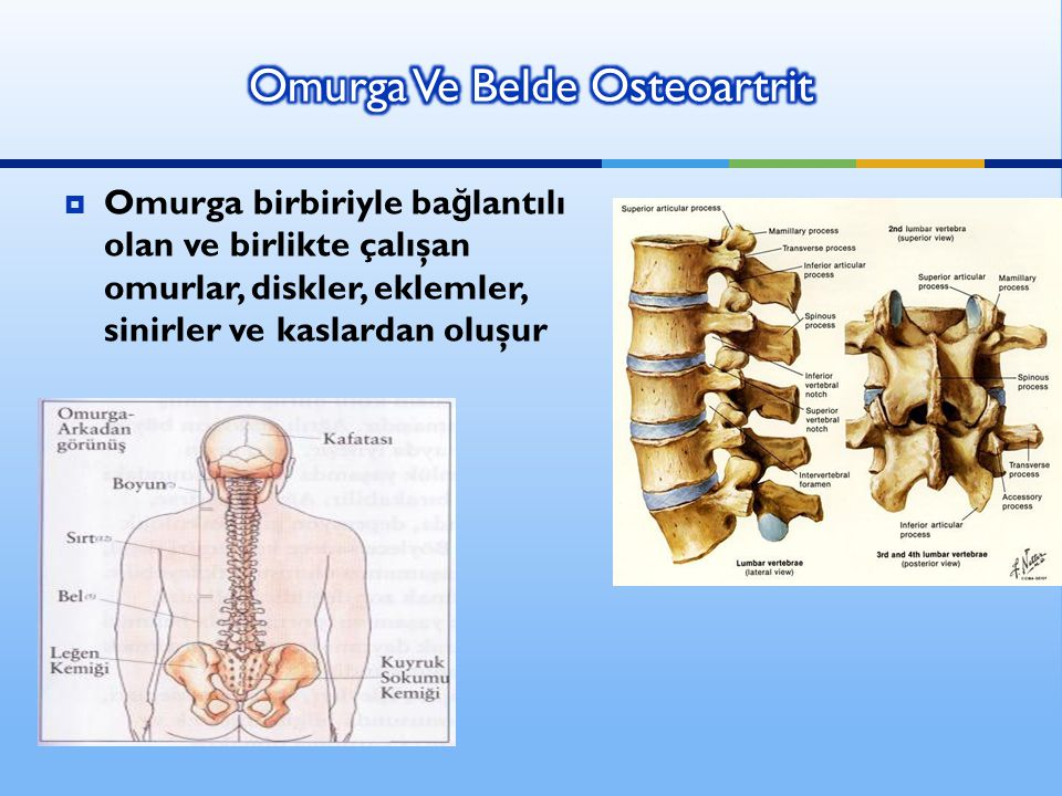 Omurga Ve Belde Osteoartrit