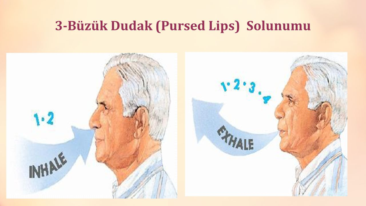 3-Büzük Dudak (Pursed Lips) Solunumu