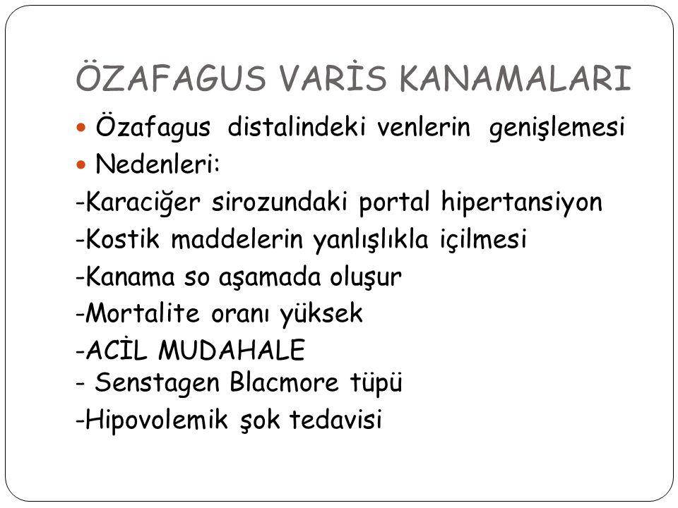 ÖZAFAGUS VARİS KANAMALARI
