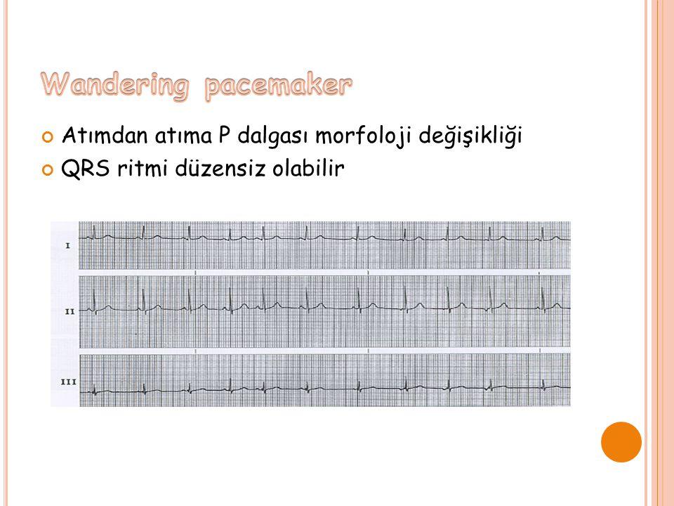 Wandering pacemaker Atımdan atıma P dalgası morfoloji değişikliği