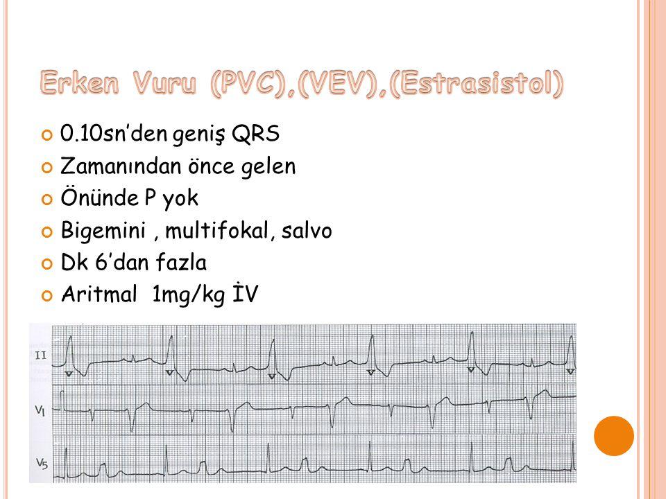 Erken Vuru (PVC),(VEV),(Estrasistol)