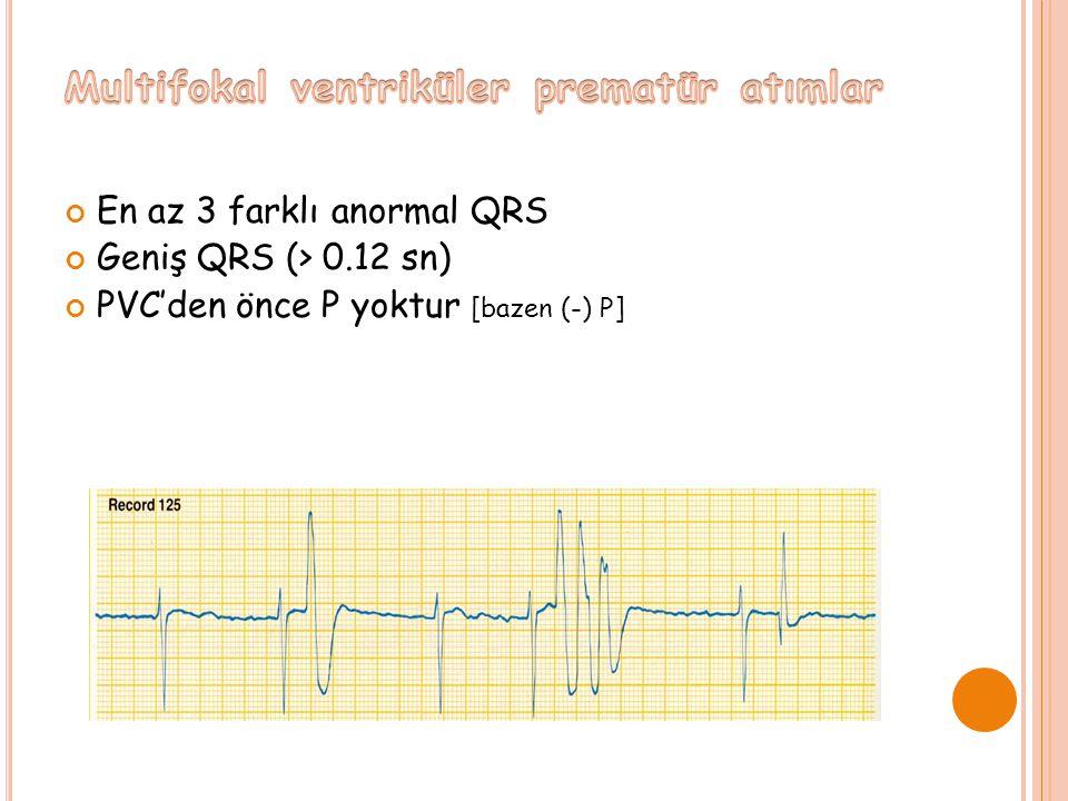 Multifokal ventriküler prematür atımlar