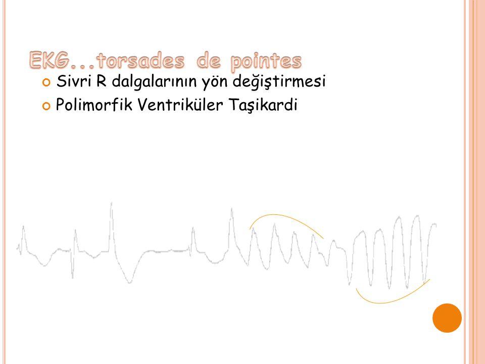 EKG...torsades de pointes