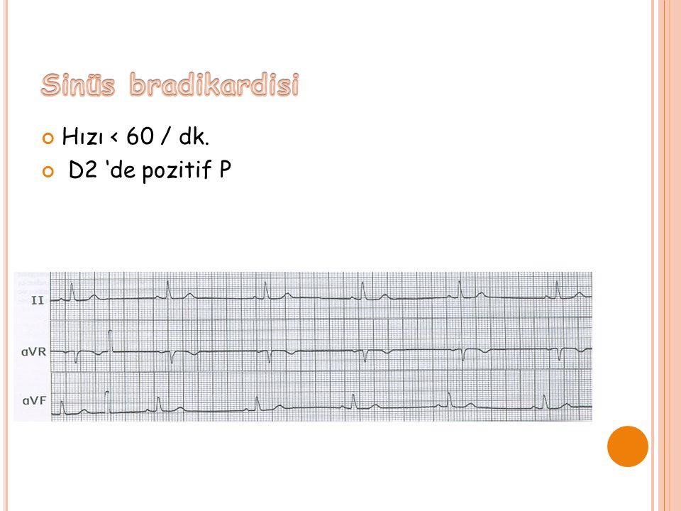 Sinüs bradikardisi Hızı < 60 / dk. D2 'de pozitif P