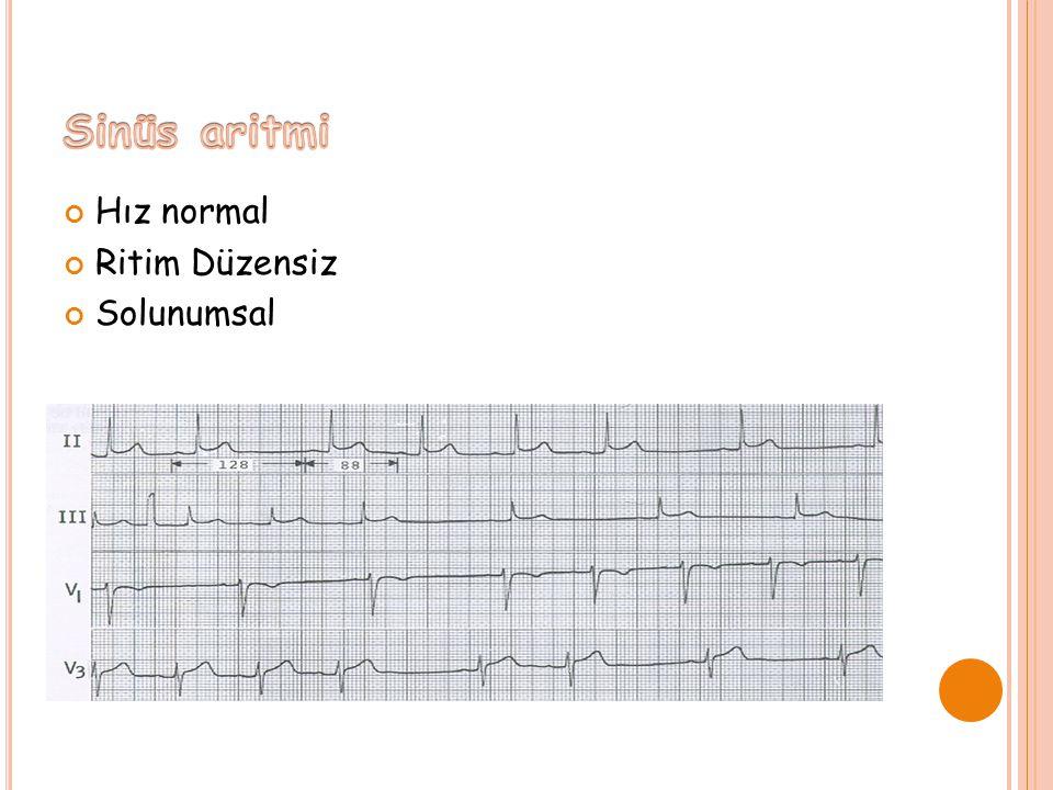Sinüs aritmi Hız normal Ritim Düzensiz Solunumsal