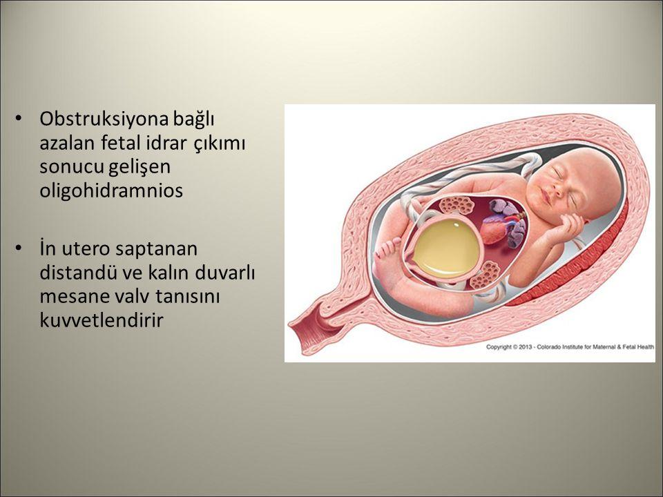 Obstruksiyona bağlı azalan fetal idrar çıkımı sonucu gelişen oligohidramnios