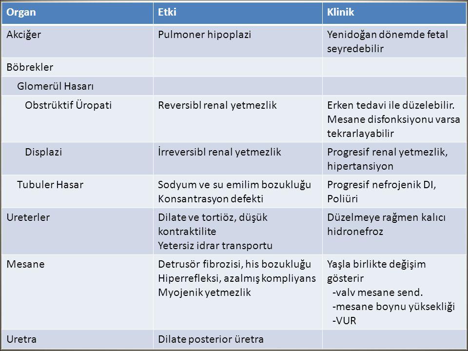 Posterior Üretral Valv Patofizyoloji