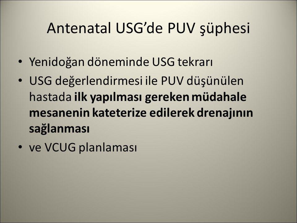 Antenatal USG'de PUV şüphesi