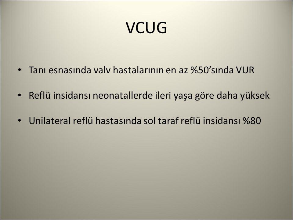VCUG Tanı esnasında valv hastalarının en az %50'sında VUR