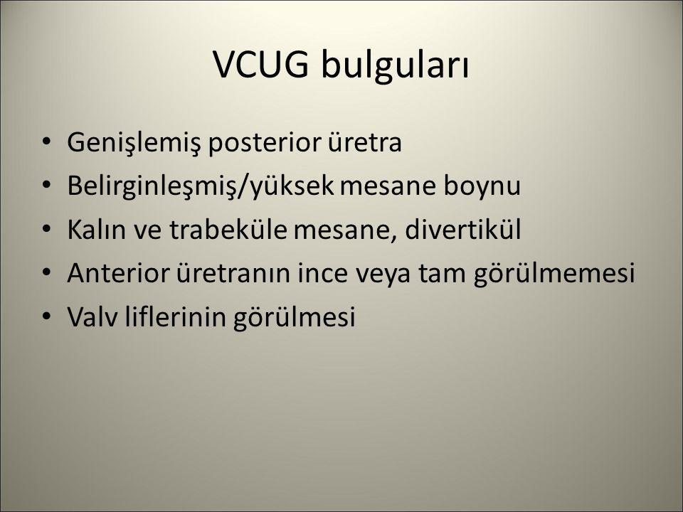 VCUG bulguları Genişlemiş posterior üretra