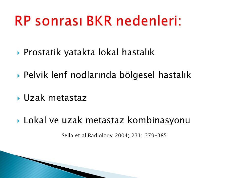 RP sonrası BKR nedenleri: