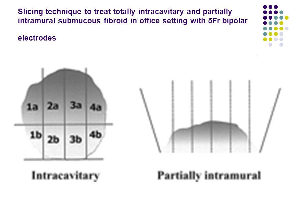 Slicing technique to treat totally intracavitary and partially intramural submucous fibroid in office setting with 5Fr bipolar electrodes