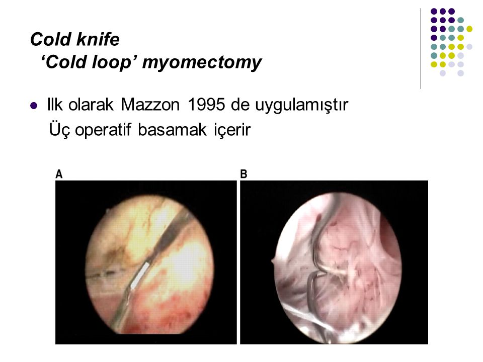 Cold knife 'Cold loop' myomectomy