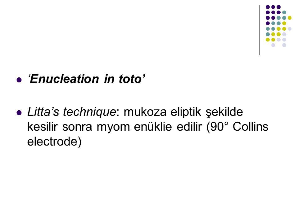 'Enucleation in toto' Litta's technique: mukoza eliptik şekilde kesilir sonra myom enüklie edilir (90° Collins electrode)