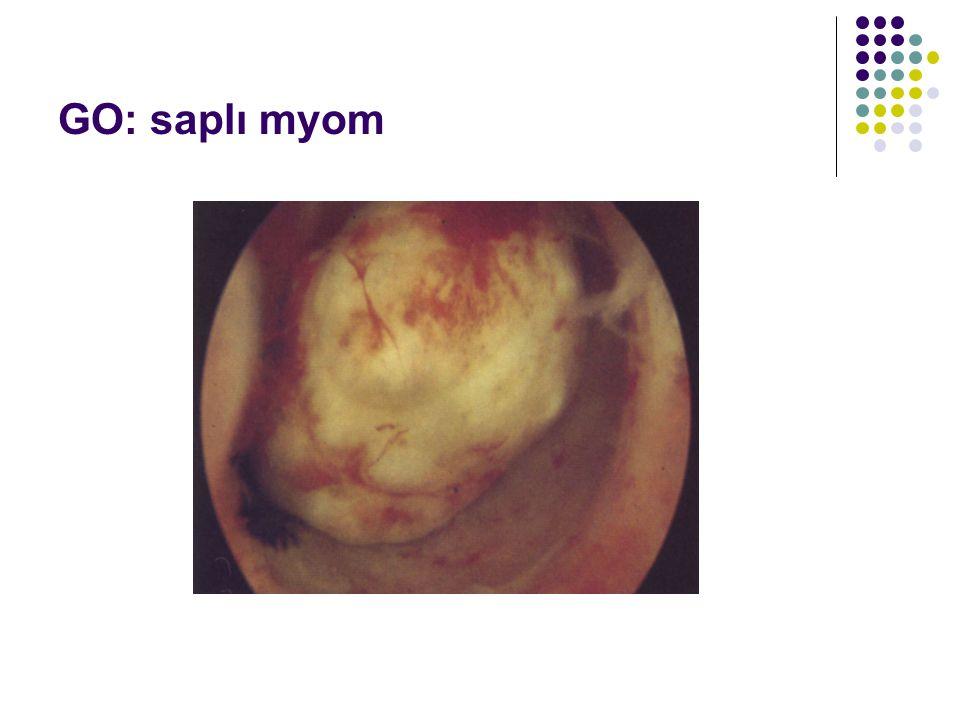 GO: saplı myom