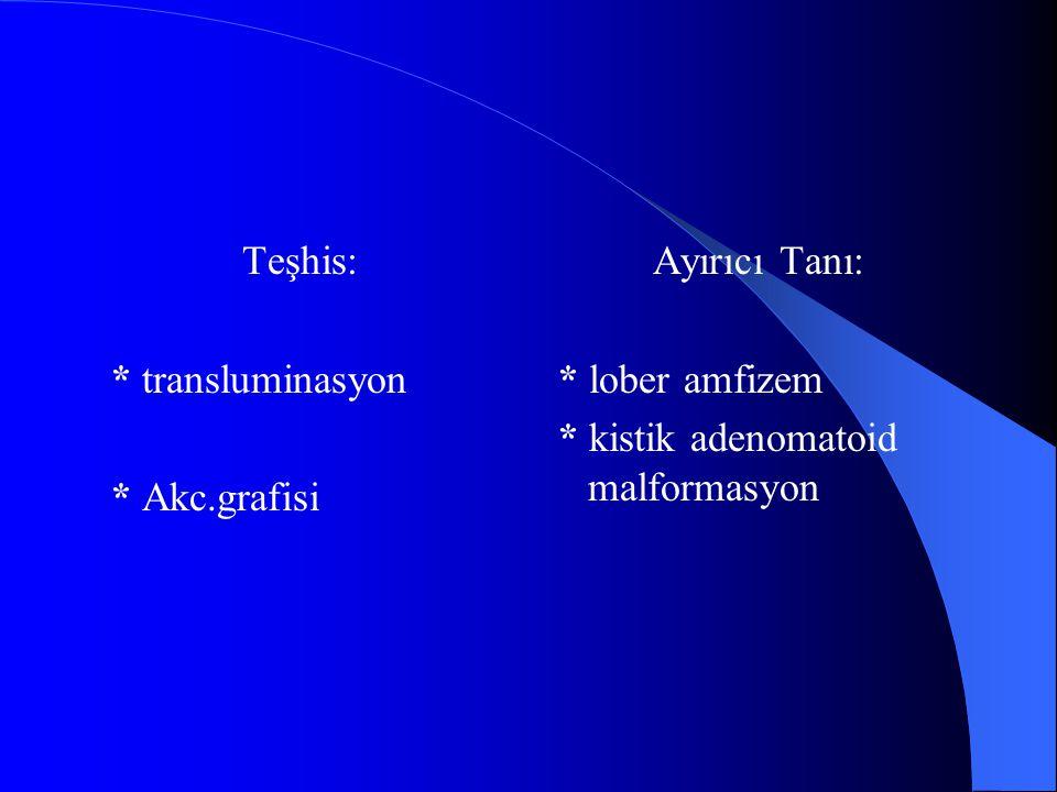 Teşhis: * transluminasyon. * Akc.grafisi. Ayırıcı Tanı: * lober amfizem.