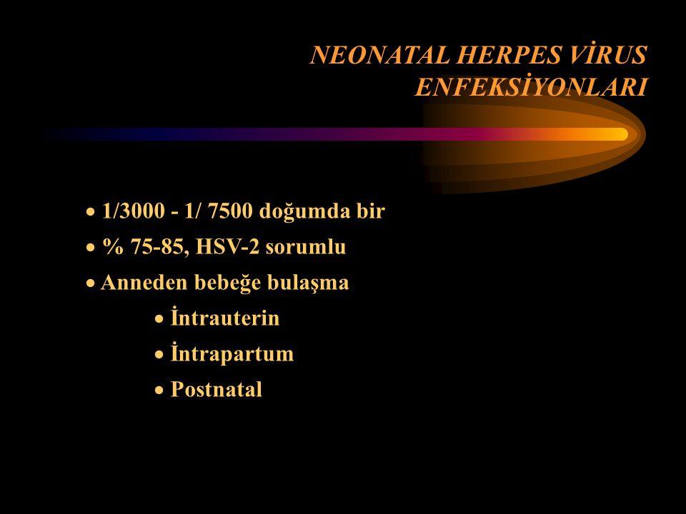NEONATAL HERPES VİRUS ENFEKSİYONLARI 1/3000 - 1/ 7500 doğumda bir