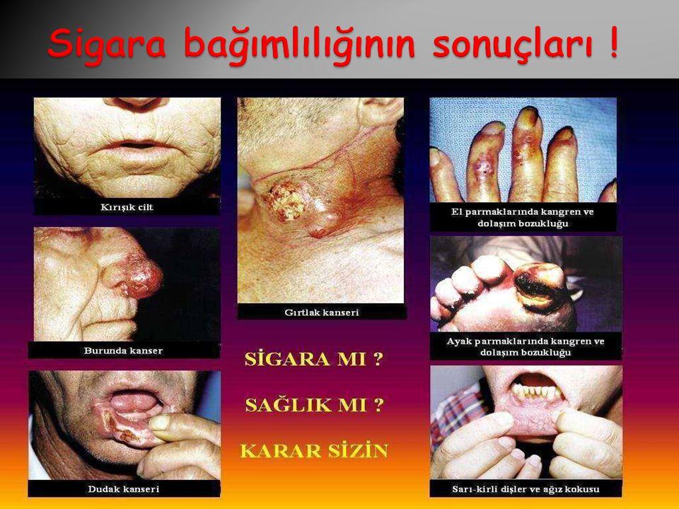 Sigara bağımlılığının sonuçları !